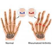 Диагностика и лечение суставов